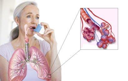 Bu regionlarda bronxial astma daha çox yayılır…