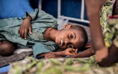 Bu ölkədə 132 uşaq aclıqdan öldü