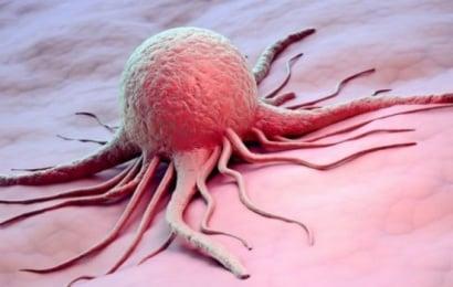 Ученые выяснили, как можно предотвратить развитие рака