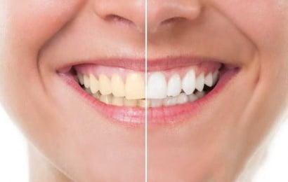 Dişlərinizin 9 düşmənini tanıyın