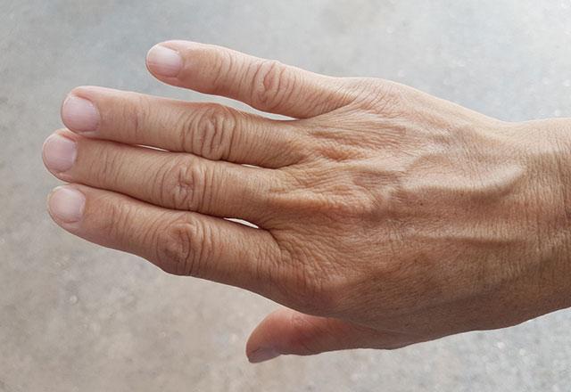 Bədəndə damarların görünməsinin səbəbləri