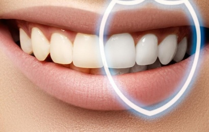 Diş ərpindən xilas olmağın təbii yolları