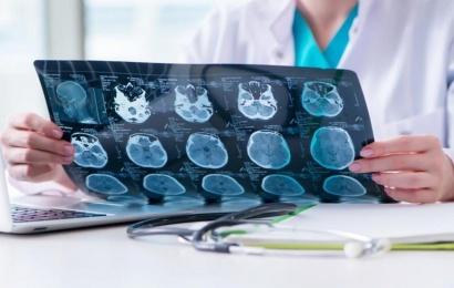 Koronavirusun beyin damarlarına təsiri məlum olub