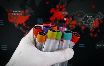 Koronavirusun daha bir təhlükəli növü Rusiyada aşkarlandı