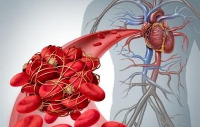 COVİD-19 infeksiyasına yoluxanlar niyə trombdan ölürlər?-şok səbəblər